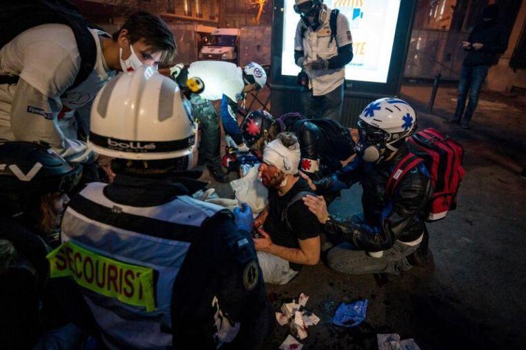Fotoperiodista galardonado herido que cubre una protesta en París