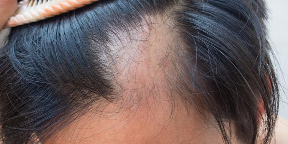 pérdida de cabello en las mujeres